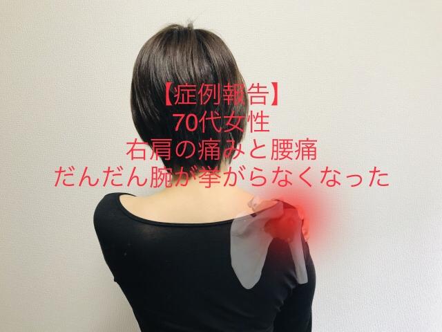 女性 腰痛 右側