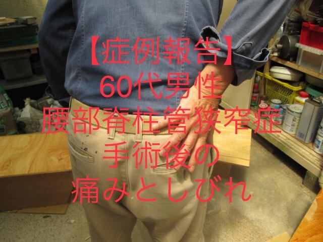 60代男性 腰部脊柱管狭窄症 手術後の痛みやしびれ