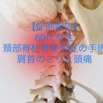 60代 女性 頚椎ヘルニア手術後のケア